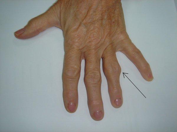 arthrose de l articulation interphalangienne proximale des doigts chirurgie de la. Black Bedroom Furniture Sets. Home Design Ideas