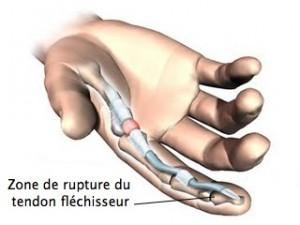 rugby-finger