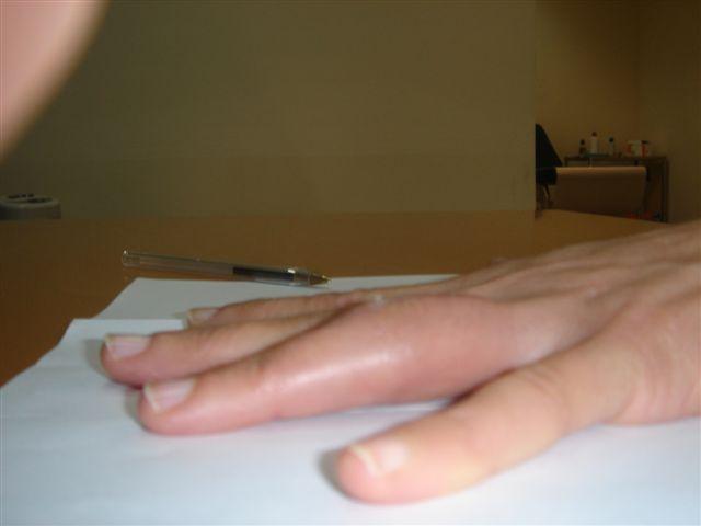 doigt écrasé et casse