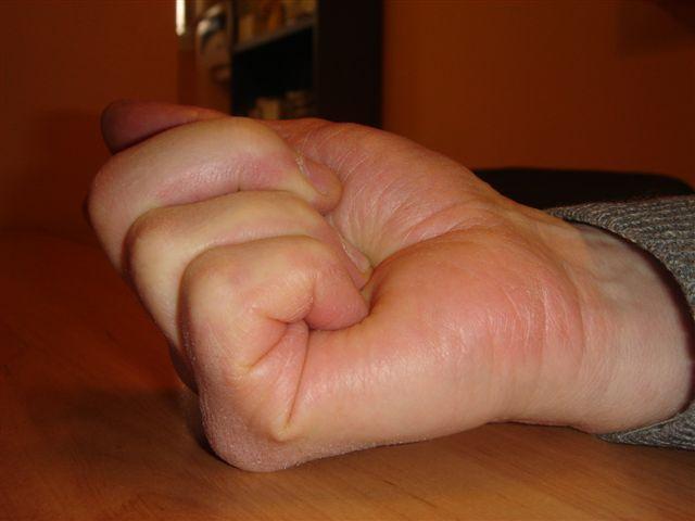 guérir tennis elbow