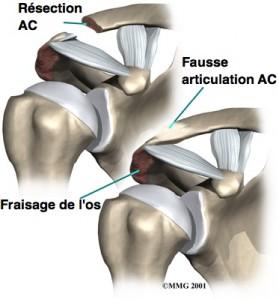 Entorse et luxation acromio-claviculaire - Chirurgie de la ...