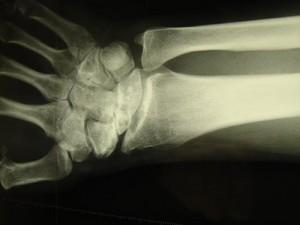 arthrose-poignet2