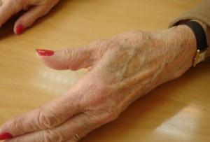 deformation-arthrose-base-du-pouce