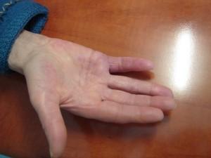 dupuytren-post-operatoire-j1-mois
