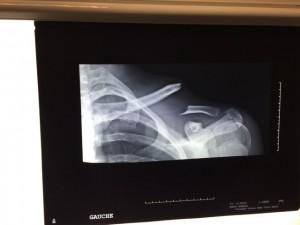 fracture déplacée de la clavicule