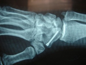 fracture-scaphoide-1-1024x768