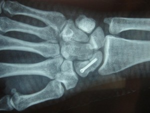 fracture-scaphoide-2-1024x768