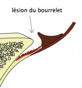 lesion-du-bourrelet-1