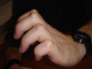 nodule-dorsaux-doigt-dupuytren