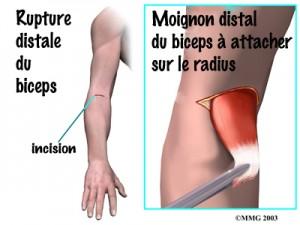 photo-biceps-4