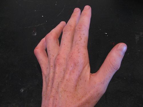 Compression du nerf cubital (ou ulnaire) au coude ...