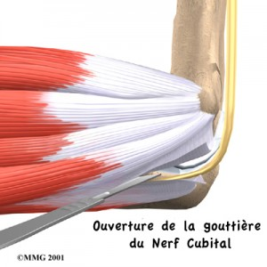 photo-nerf-ulnaire-6
