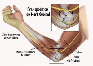 photo-nerf-ulnaire-7-transposition