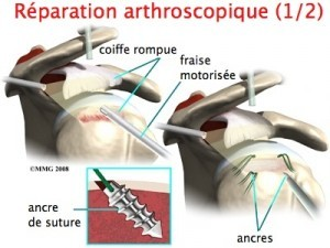 reparation-arthroscopique-2-300x225