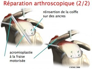 reparation-arthroscopique-3-300x225