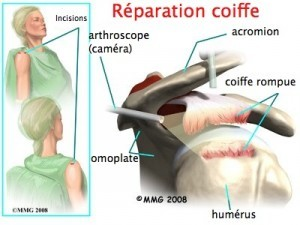 reparation-coiffe-1-300x225