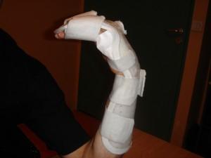 rugby-finger-attelle1-1024x768