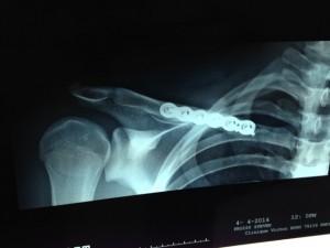 traitement chirurgicale d'une fracture déplacée de la clavicule.