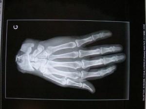 Main tranchée par une tronconneuse